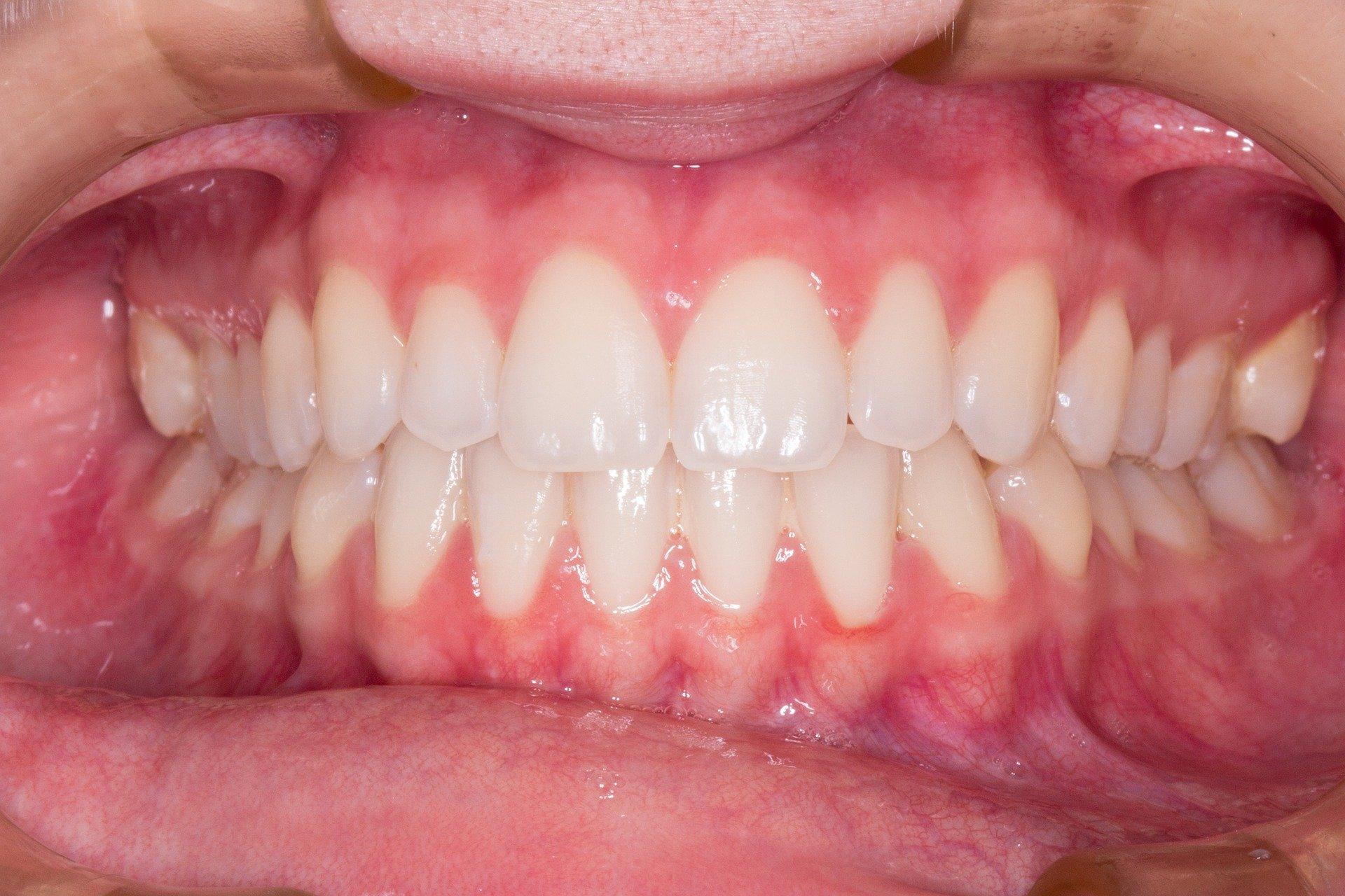 טיפול בלייזר בנגעים בפה